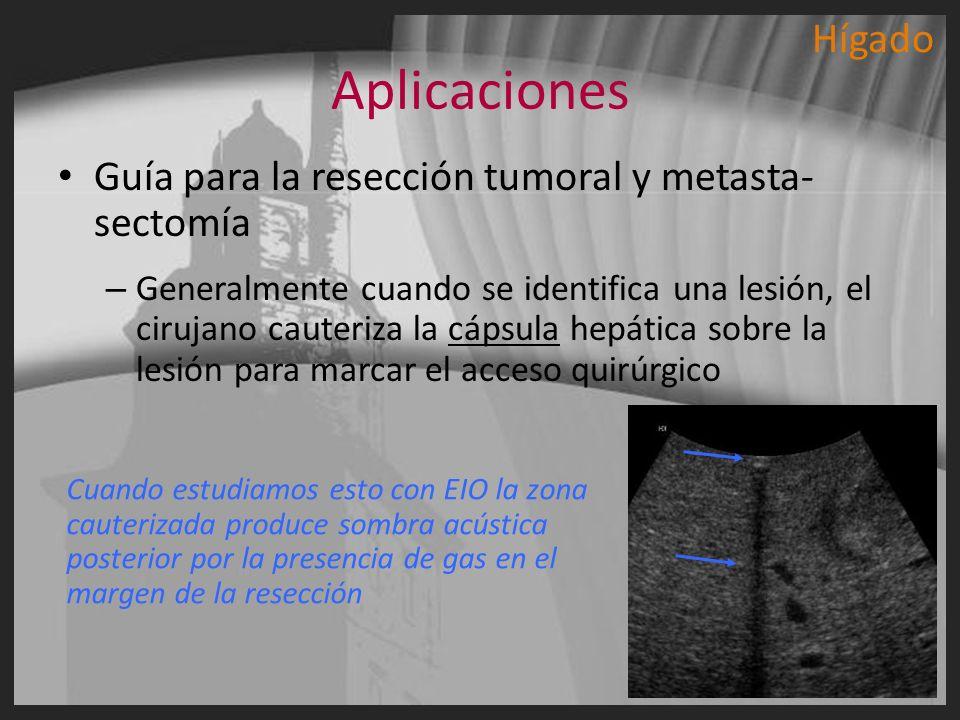 Aplicaciones Guía para la resección tumoral y metasta- sectomía – Generalmente cuando se identifica una lesión, el cirujano cauteriza la cápsula hepát