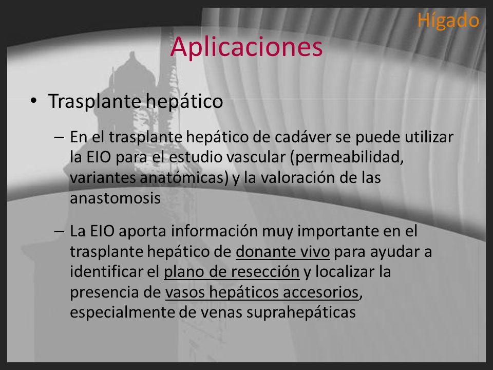 Aplicaciones Trasplante hepático – En el trasplante hepático de cadáver se puede utilizar la EIO para el estudio vascular (permeabilidad, variantes an