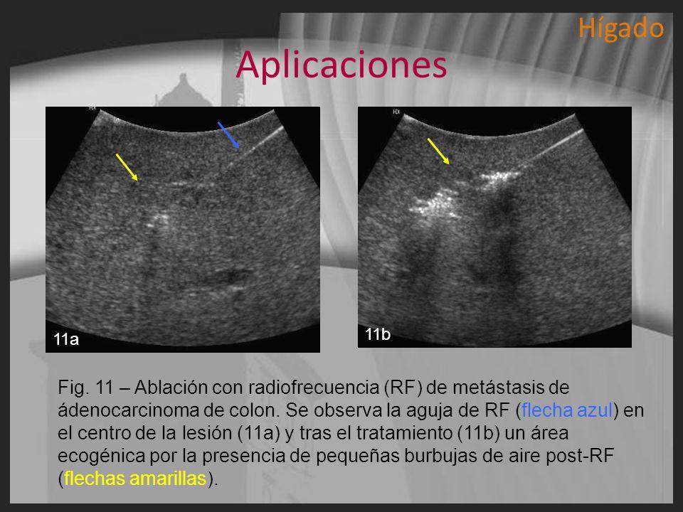 Aplicaciones Fig. 11 – Ablación con radiofrecuencia (RF) de metástasis de ádenocarcinoma de colon. Se observa la aguja de RF (flecha azul) en el centr