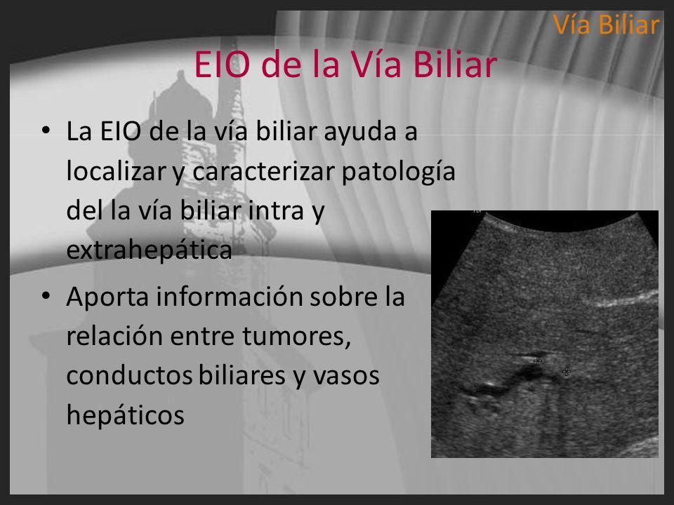 EIO de la Vía Biliar La EIO de la vía biliar ayuda a localizar y caracterizar patología del la vía biliar intra y extrahepática Aporta información sob
