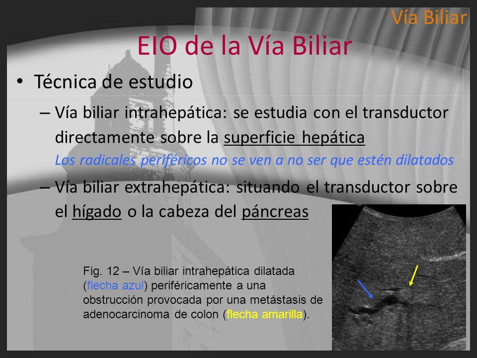 EIO de la Vía Biliar Técnica de estudio – Vía biliar intrahepática: se estudia con el transductor directamente sobre la superficie hepática Los radica