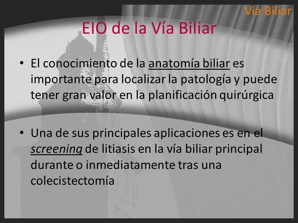 EIO de la Vía Biliar El conocimiento de la anatomía biliar es importante para localizar la patología y puede tener gran valor en la planificación quir