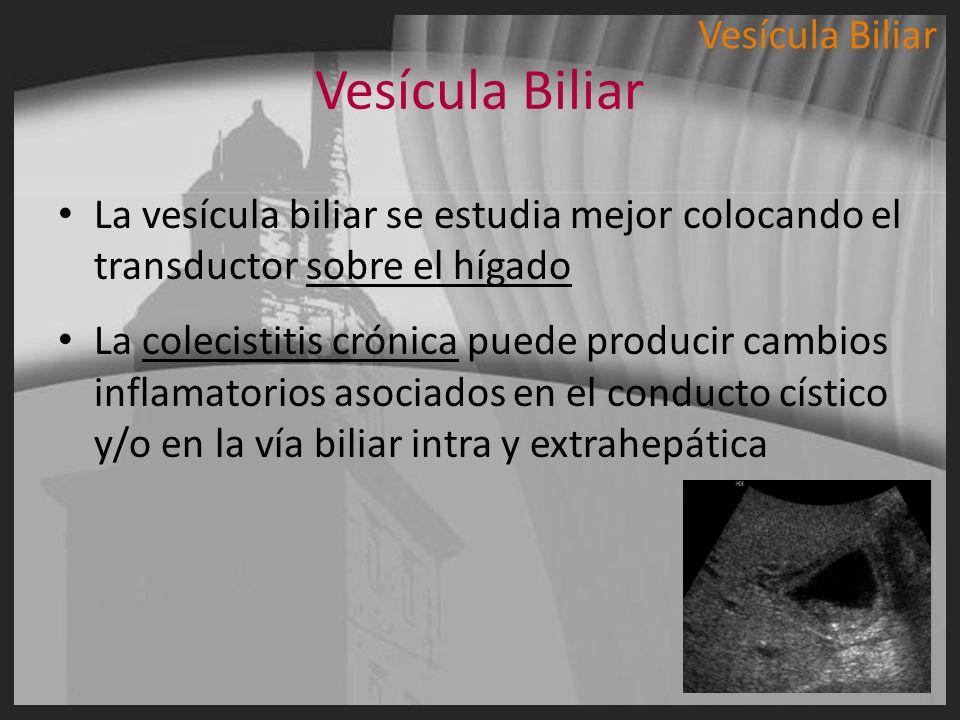Vesícula Biliar La vesícula biliar se estudia mejor colocando el transductor sobre el hígado La colecistitis crónica puede producir cambios inflamator