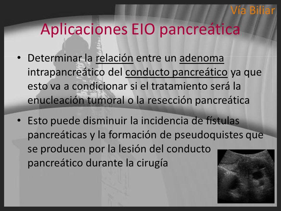 Determinar la relación entre un adenoma intrapancreático del conducto pancreático ya que esto va a condicionar si el tratamiento será la enucleación t