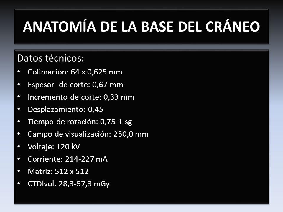 CONDUCTO ÓPTICO Nervio óptico Arteria oftálmica ANATOMÍA DE LA BASE DEL CRÁNEO