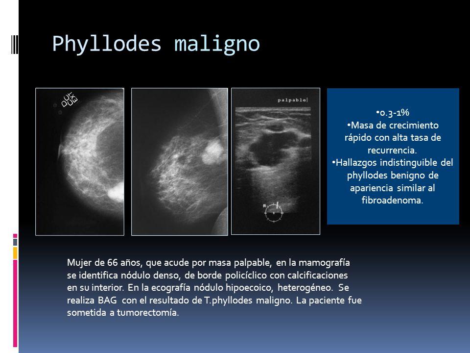 Phyllodes maligno Mujer de 66 años, que acude por masa palpable, en la mamografía se identifica nódulo denso, de borde policíclico con calcificaciones