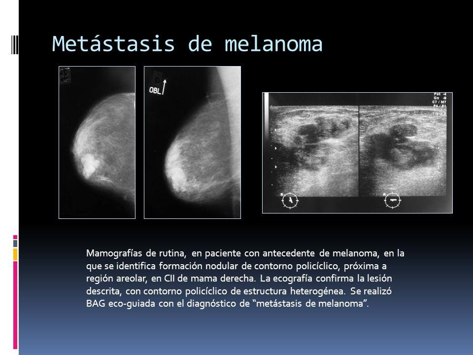 Metástasis de melanoma Mamografías de rutina, en paciente con antecedente de melanoma, en la que se identifica formación nodular de contorno policícli