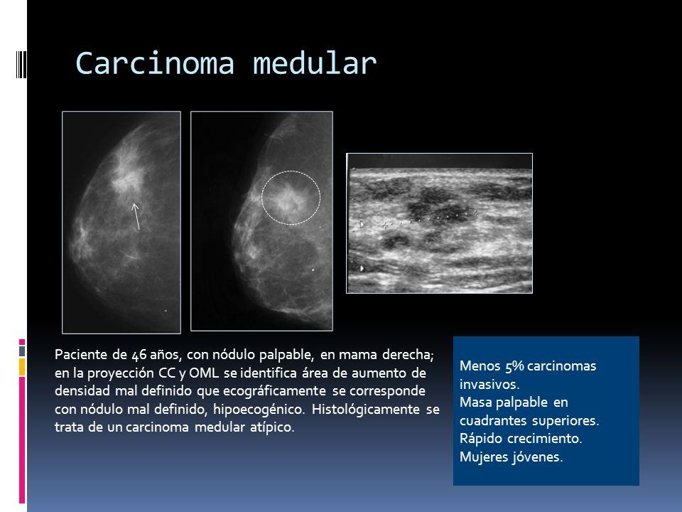 Carcinoma medular Paciente de 46 años, con nódulo palpable, en mama derecha; en la proyección CC y OML se identifica área de aumento de densidad mal d