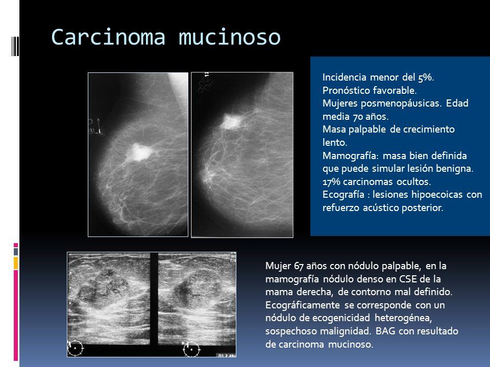 Carcinoma tubular 2% carcinomas de mama.Lento crecimiento Pequeño tamaño, no tactable.