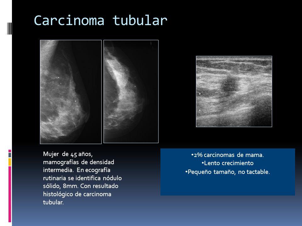 Metástasis de carcinoma de células renales Paciente de 62 años, que acude por masa palpable en CSE mama izquierda, en la mamografía se identifica un nódulo denso (flecha negra), bien definido y otro nódulo milimétrico en CSE (círculo rojo).