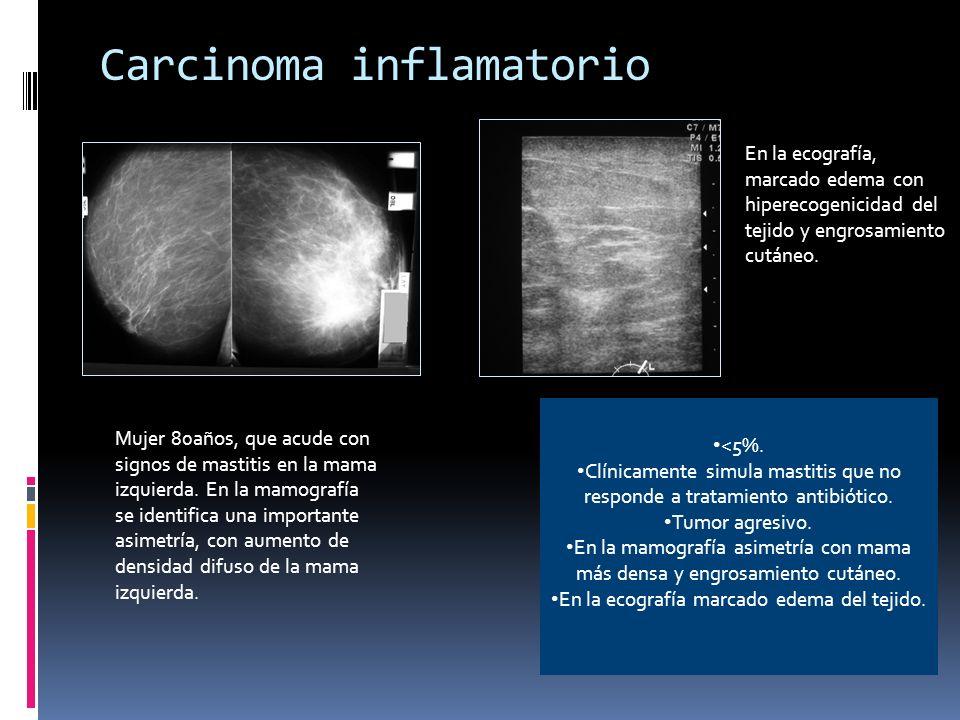 Carcinoma inflamatorio <5%. Clínicamente simula mastitis que no responde a tratamiento antibiótico. Tumor agresivo. En la mamografía asimetría con mam