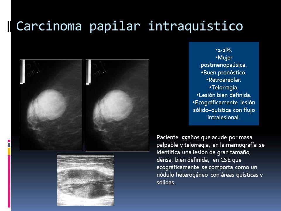 Metástasis de pulmón Paciente varón que acude por nódulo palpable.