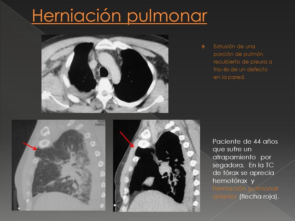 Extrusión de una porción de pulmón recubierto de pleura a través de un defecto en la pared. Paciente de 44 años que sufre un atrapamiento por segadora