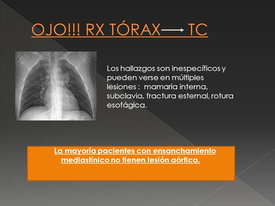 Los hallazgos son inespecíficos y pueden verse en múltiples lesiones : mamaria interna, subclavia, fractura esternal, rotura esofágica. La mayoría pac