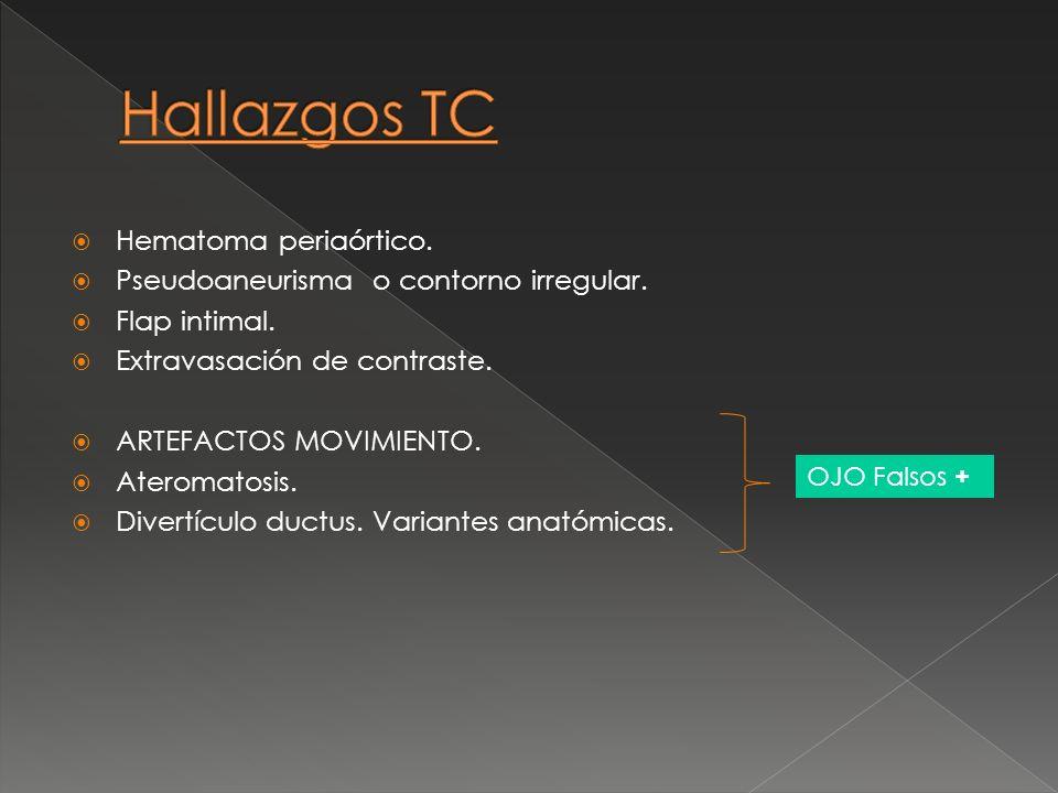 Hematoma periaórtico. Pseudoaneurisma o contorno irregular. Flap intimal. Extravasación de contraste. ARTEFACTOS MOVIMIENTO. Ateromatosis. Divertículo