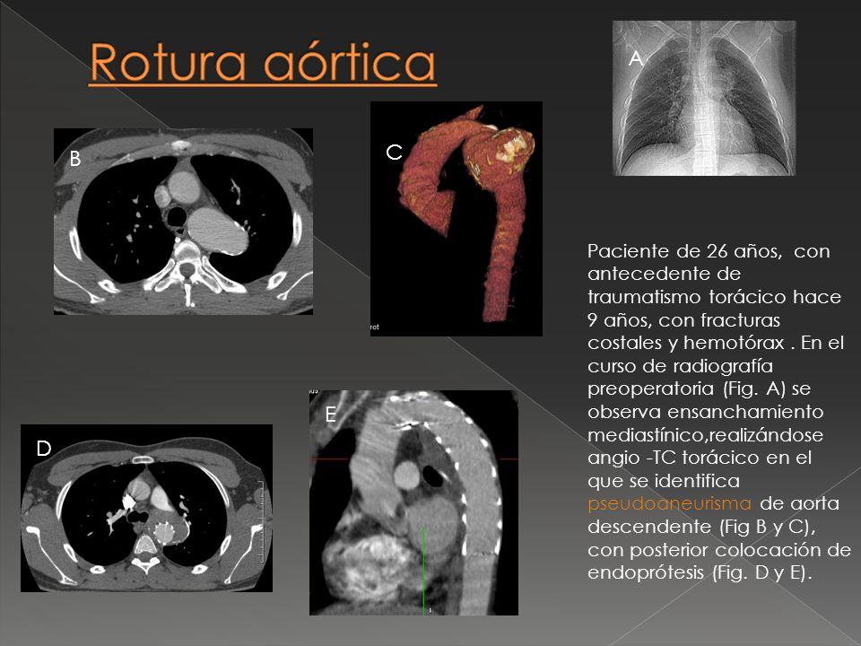 Paciente de 26 años, con antecedente de traumatismo torácico hace 9 años, con fracturas costales y hemotórax. En el curso de radiografía preoperatoria