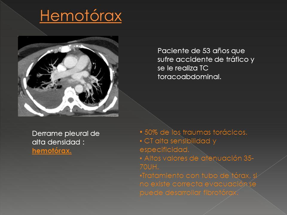 50% de los traumas torácicos. CT alta sensibilidad y especificidad. Altos valores de atenuación 35- 70UH. Tratamiento con tubo de tórax, si no existe