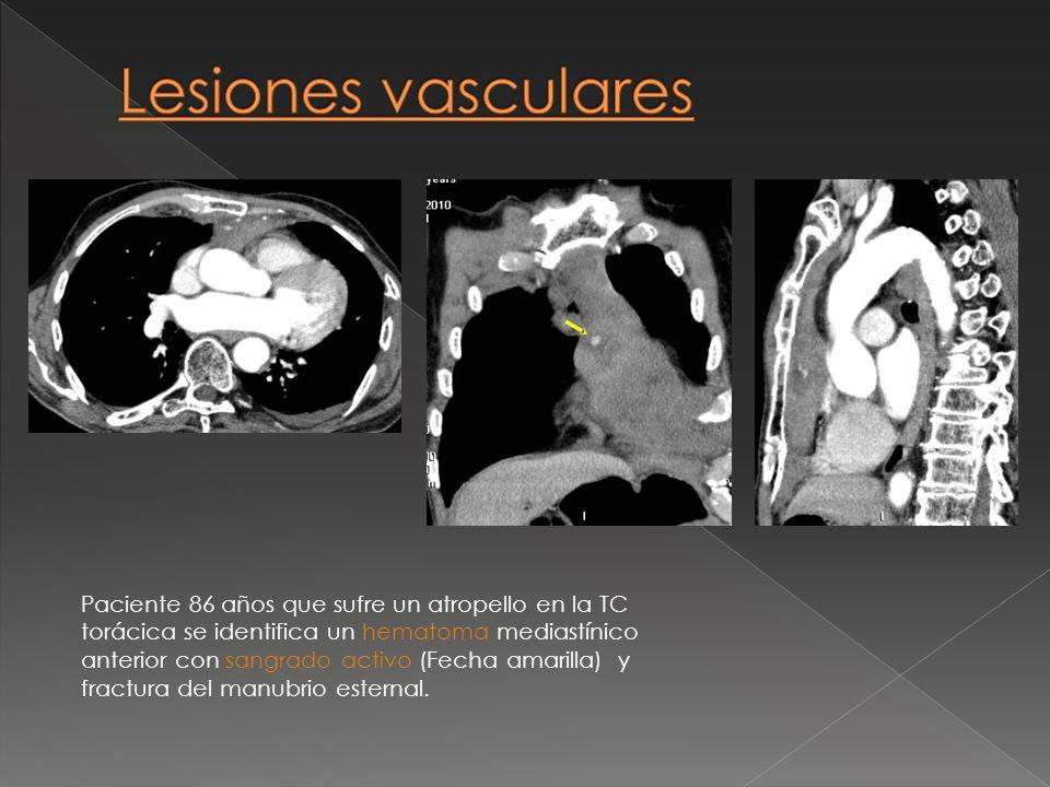 Paciente 86 años que sufre un atropello en la TC torácica se identifica un hematoma mediastínico anterior con sangrado activo (Fecha amarilla) y fract