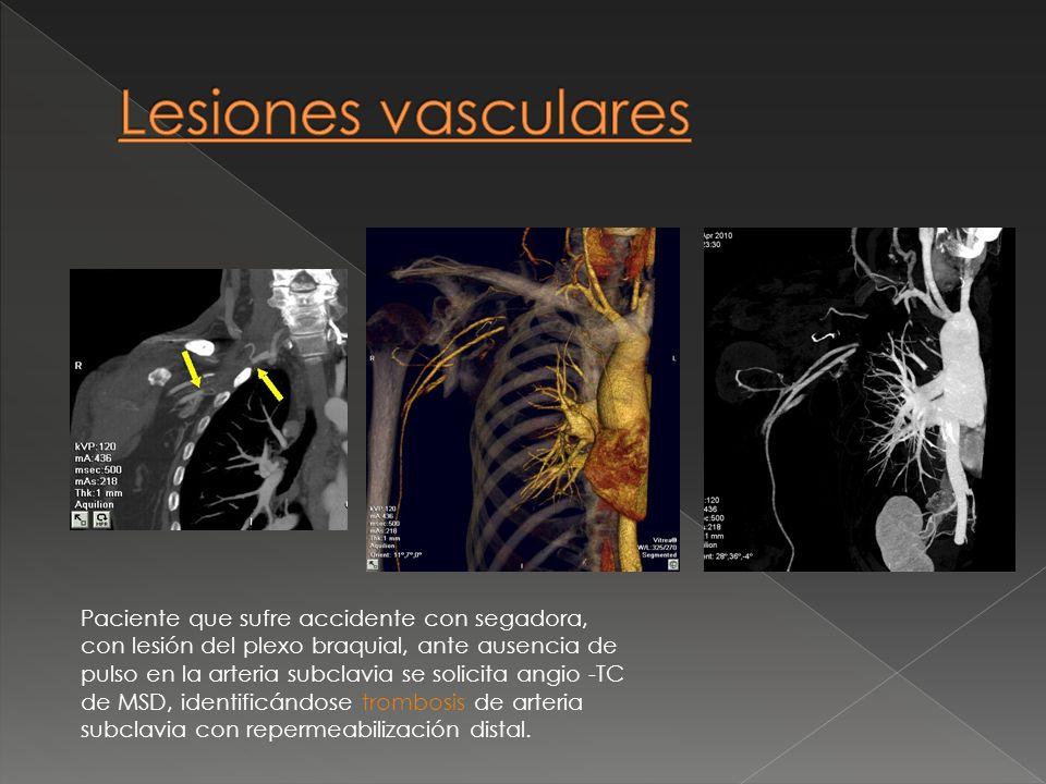Paciente que sufre accidente con segadora, con lesión del plexo braquial, ante ausencia de pulso en la arteria subclavia se solicita angio -TC de MSD,