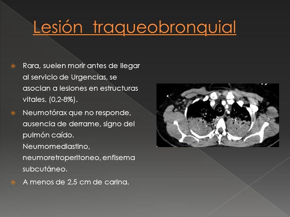 Rara, suelen morir antes de llegar al servicio de Urgencias, se asocian a lesiones en estructuras vitales. (0,2-8%). Neumotórax que no responde, ausen