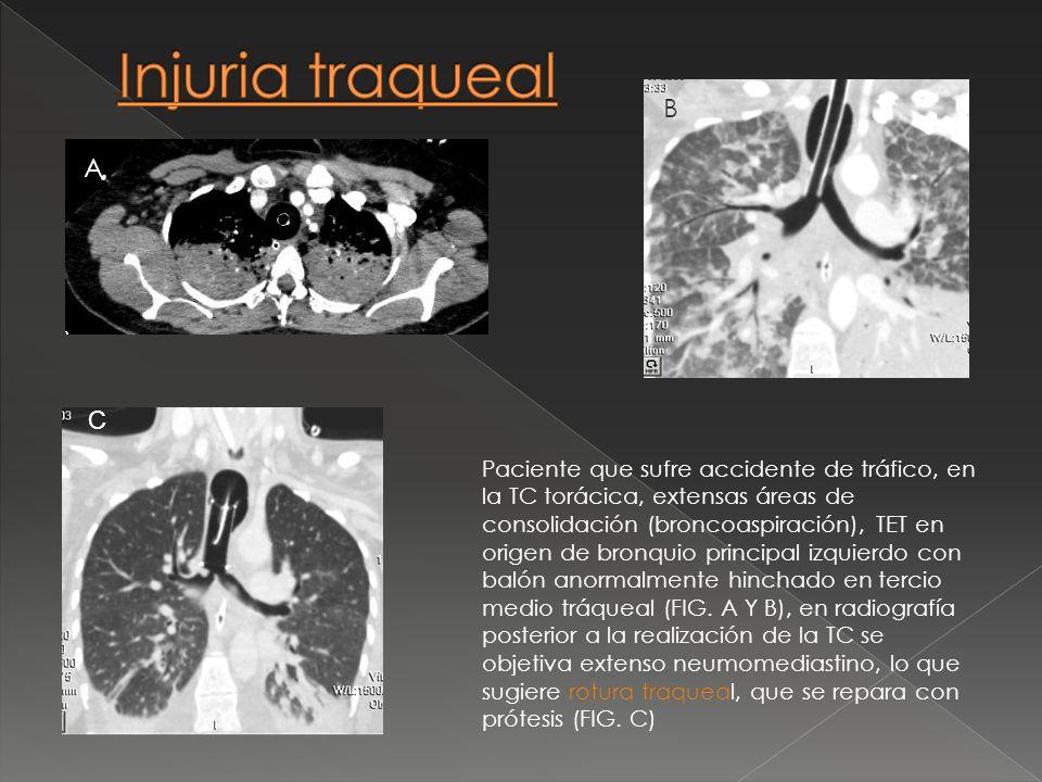 Paciente que sufre accidente de tráfico, en la TC torácica, extensas áreas de consolidación (broncoaspiración), TET en origen de bronquio principal iz