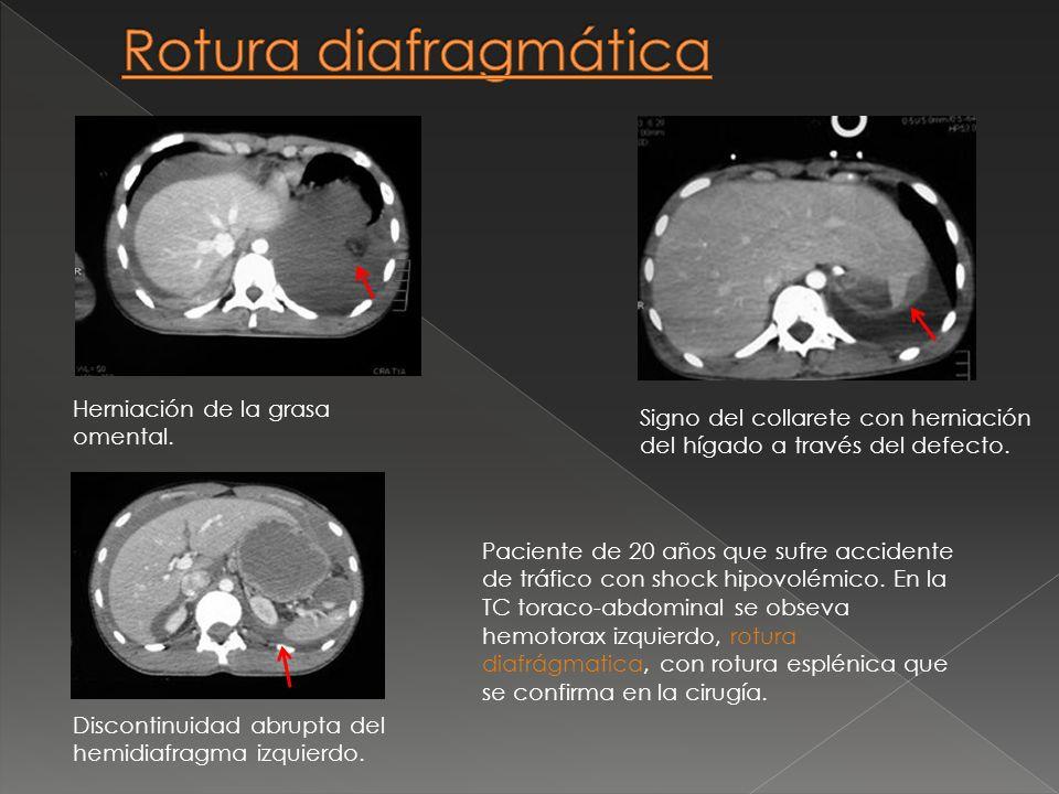 Paciente de 20 años que sufre accidente de tráfico con shock hipovolémico. En la TC toraco-abdominal se obseva hemotorax izquierdo, rotura diafrágmati