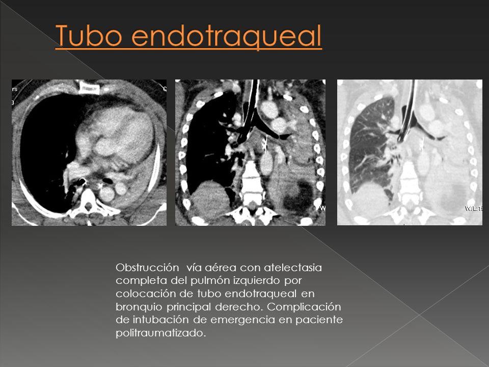 Obstrucción vía aérea con atelectasia completa del pulmón izquierdo por colocación de tubo endotraqueal en bronquio principal derecho. Complicación de