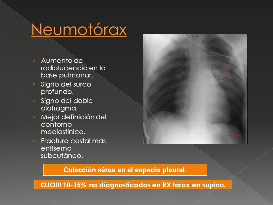 Aumento de radiolucencia en la base pulmonar. Signo del surco profundo. Signo del doble diafragma. Mejor definición del contorno mediastínico. Fractur