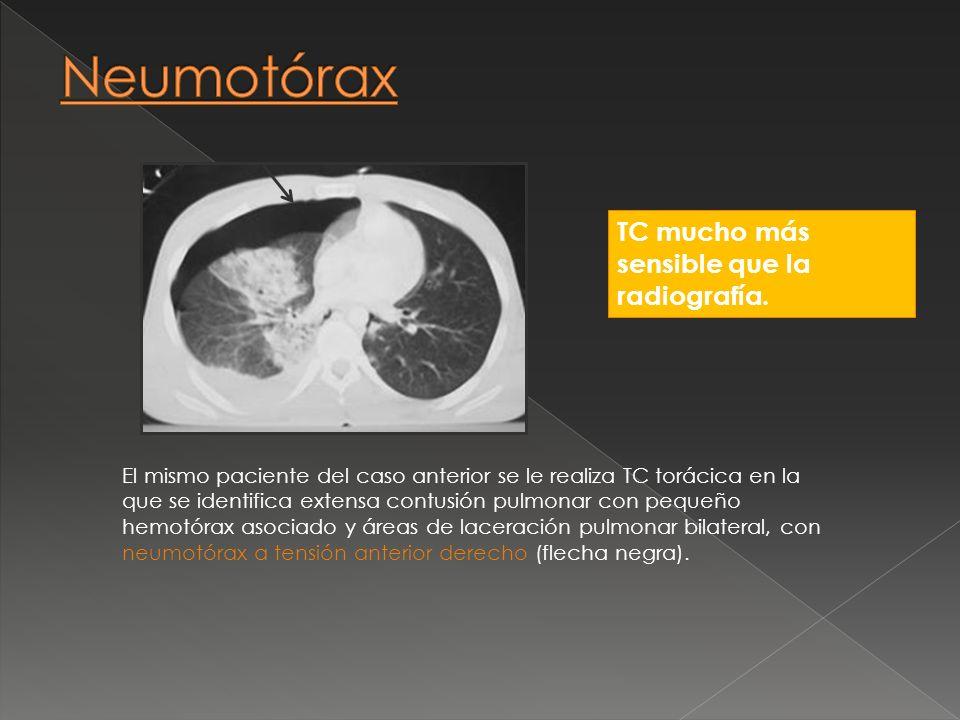 TC mucho más sensible que la radiografía. El mismo paciente del caso anterior se le realiza TC torácica en la que se identifica extensa contusión pulm