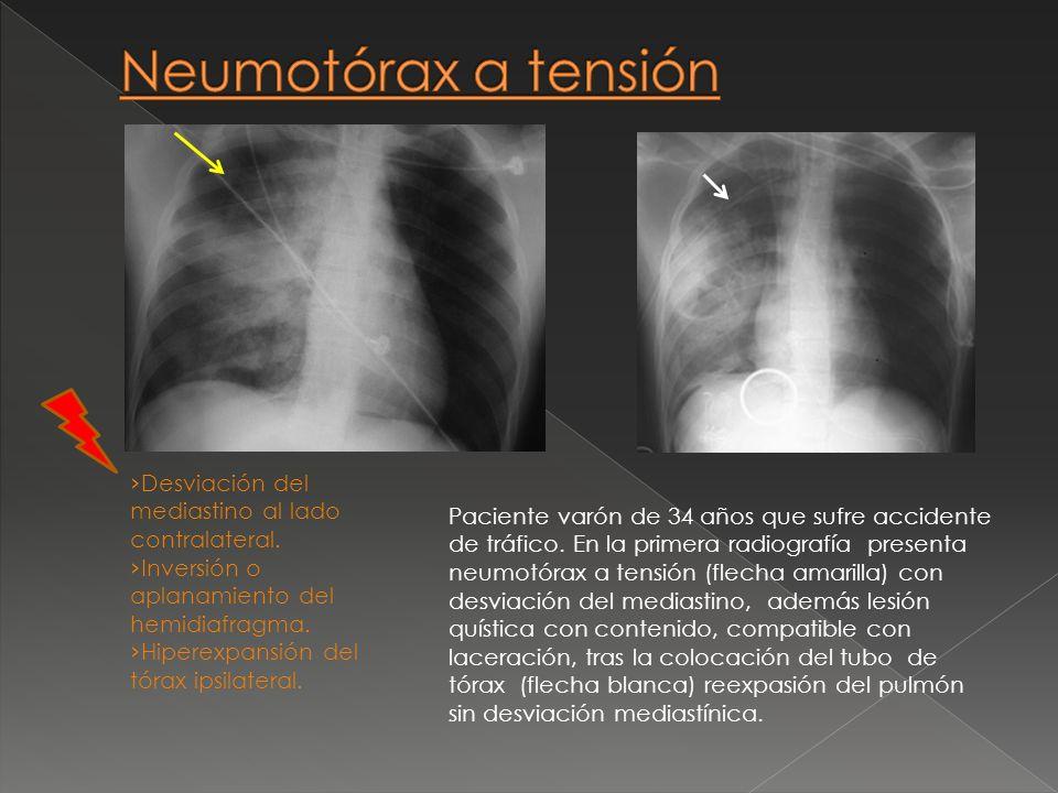 Desviación del mediastino al lado contralateral. Inversión o aplanamiento del hemidiafragma. Hiperexpansión del tórax ipsilateral. Paciente varón de 3