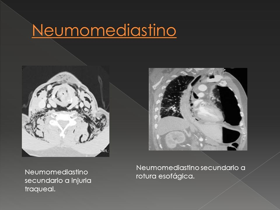 Neumomediastino secundario a rotura esofágica. Neumomediastino secundario a injuria traqueal.
