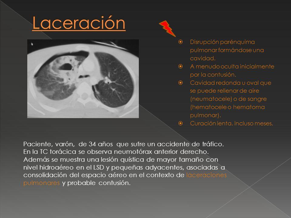 Disrupción parénquima pulmonar formándose una cavidad. A menudo oculta inicialmente por la contusión. Cavidad redonda u oval que se puede rellenar de