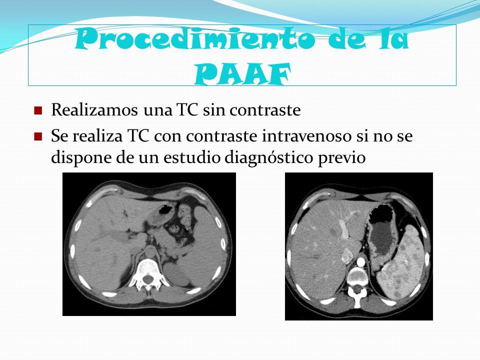 Procedimiento de la PAAF Realizamos una TC sin contraste Se realiza TC con contraste intravenoso si no se dispone de un estudio diagnóstico previo