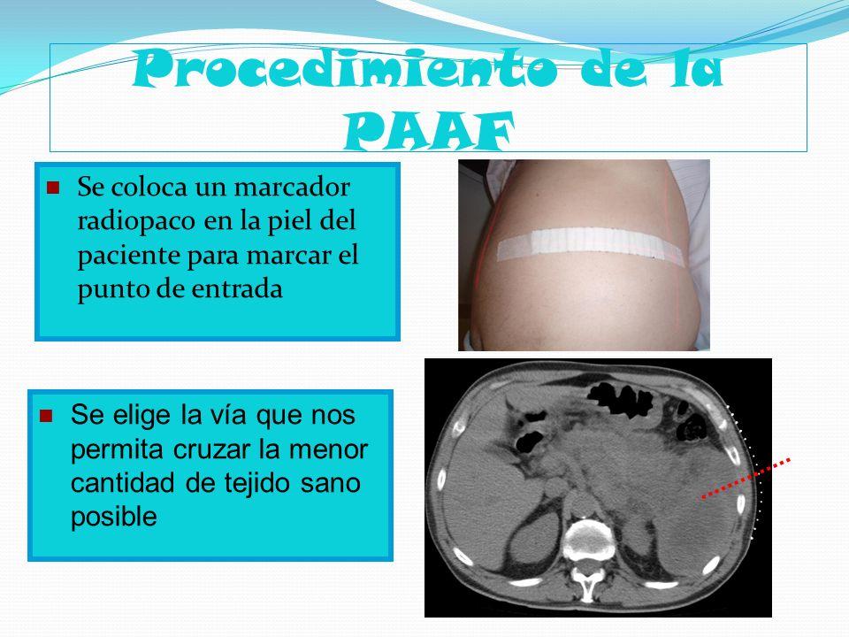 Procedimiento de la PAAF Se coloca un marcador radiopaco en la piel del paciente para marcar el punto de entrada Se elige la vía que nos permita cruza