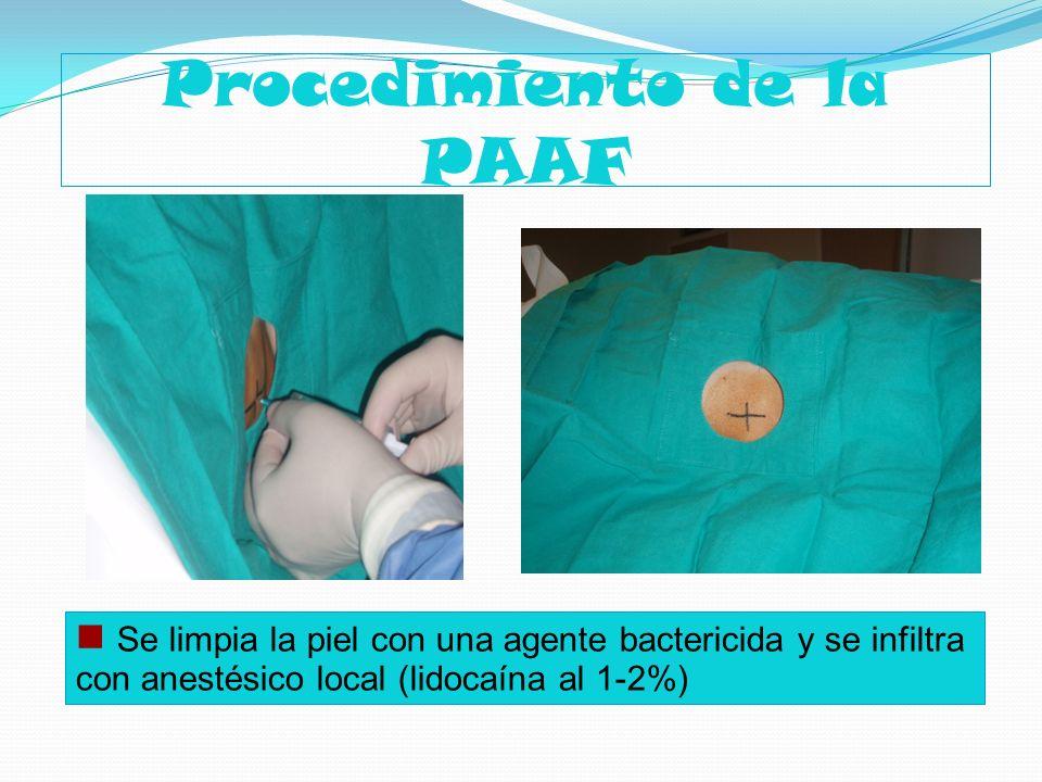 Procedimiento de la PAAF Se limpia la piel con una agente bactericida y se infiltra con anestésico local (lidocaína al 1-2%)