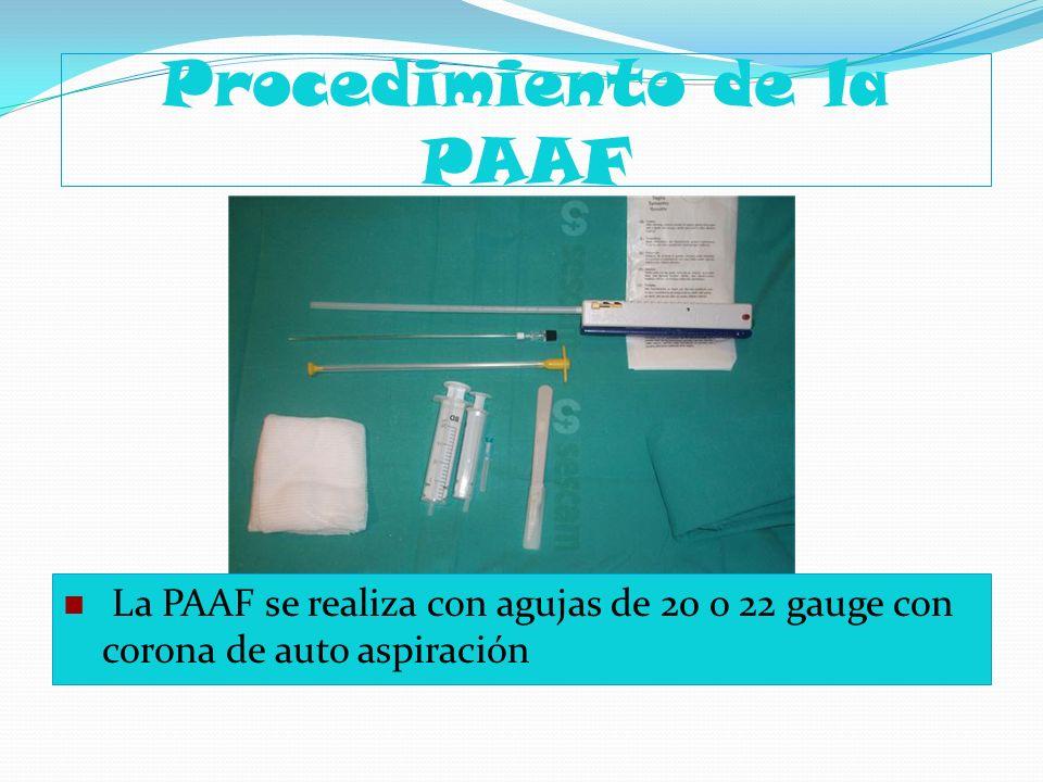 Procedimiento de la PAAF La PAAF se realiza con agujas de 20 o 22 gauge con corona de auto aspiración