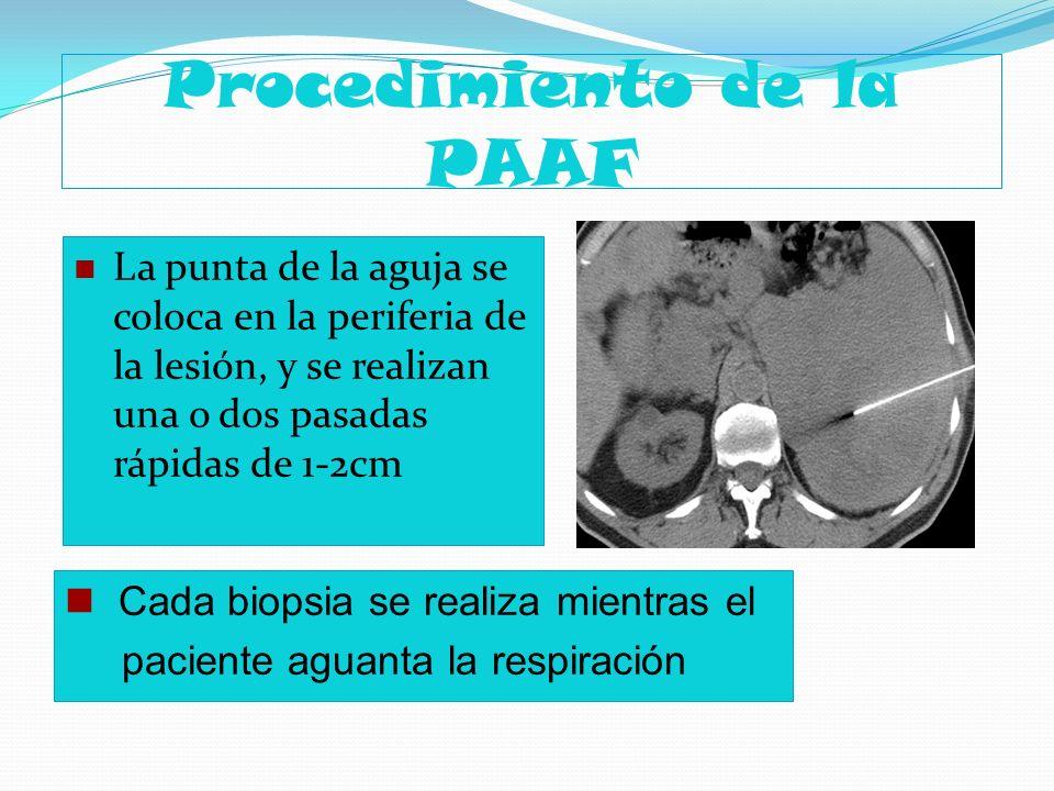 Procedimiento de la PAAF La punta de la aguja se coloca en la periferia de la lesión, y se realizan una o dos pasadas rápidas de 1-2cm Cada biopsia se
