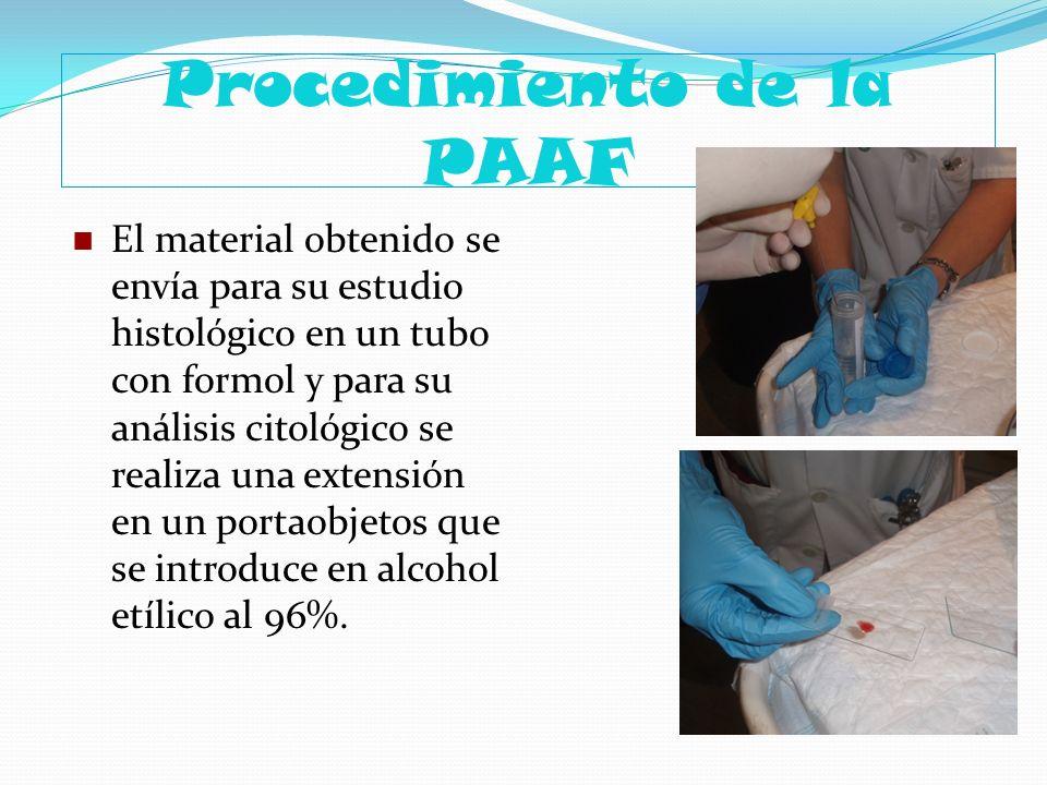 Procedimiento de la PAAF El material obtenido se envía para su estudio histológico en un tubo con formol y para su análisis citológico se realiza una