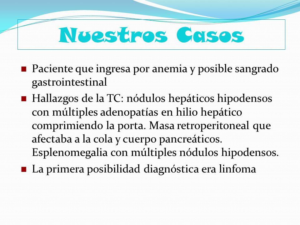 Nuestros Casos Paciente que ingresa por anemia y posible sangrado gastrointestinal Hallazgos de la TC: nódulos hepáticos hipodensos con múltiples aden