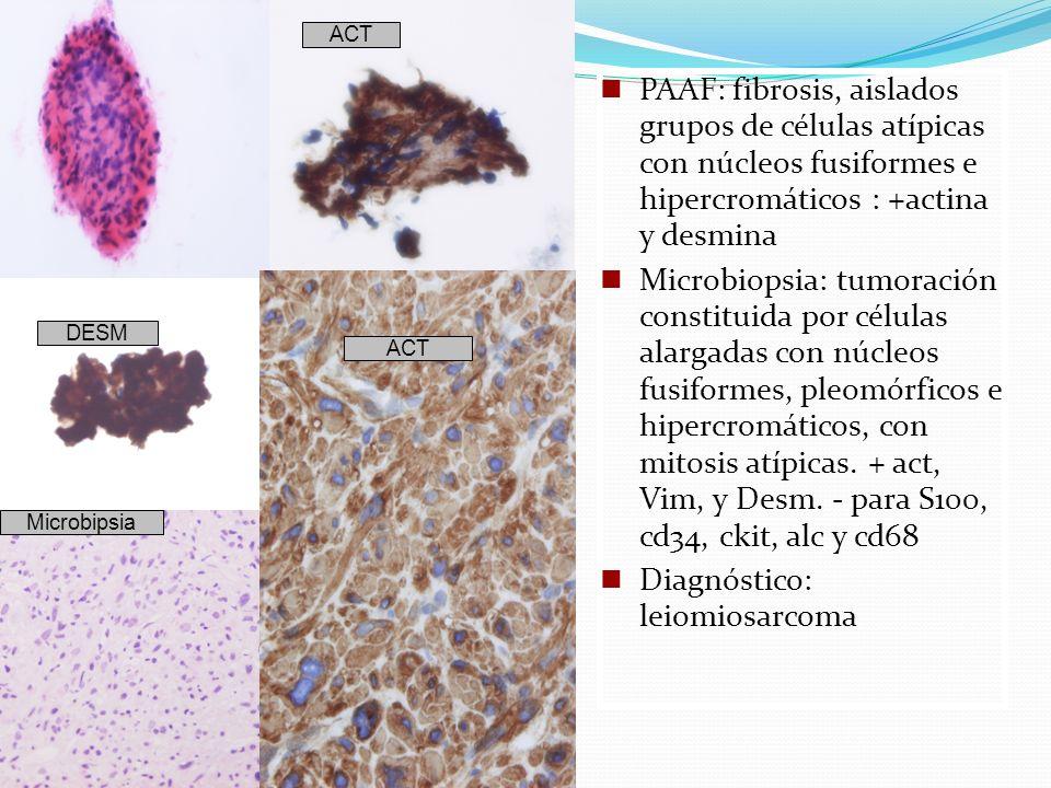 PAAF: fibrosis, aislados grupos de células atípicas con núcleos fusiformes e hipercromáticos : +actina y desmina Microbiopsia: tumoración constituida