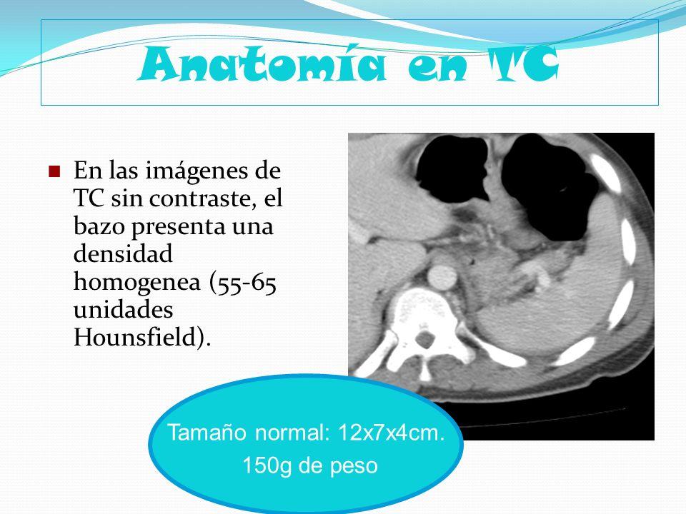 Anatomía en TC En las imágenes de TC sin contraste, el bazo presenta una densidad homogenea (55-65 unidades Hounsfield). Tamaño normal: 12x7x4cm. 150g