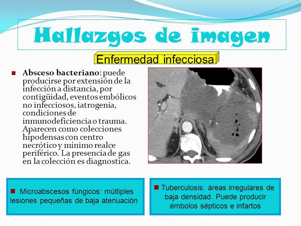 Hallazgos de imagen Absceso bacteriano: puede producirse por extensión de la infección a distancia, por contigüidad, eventos embólicos no infecciosos,