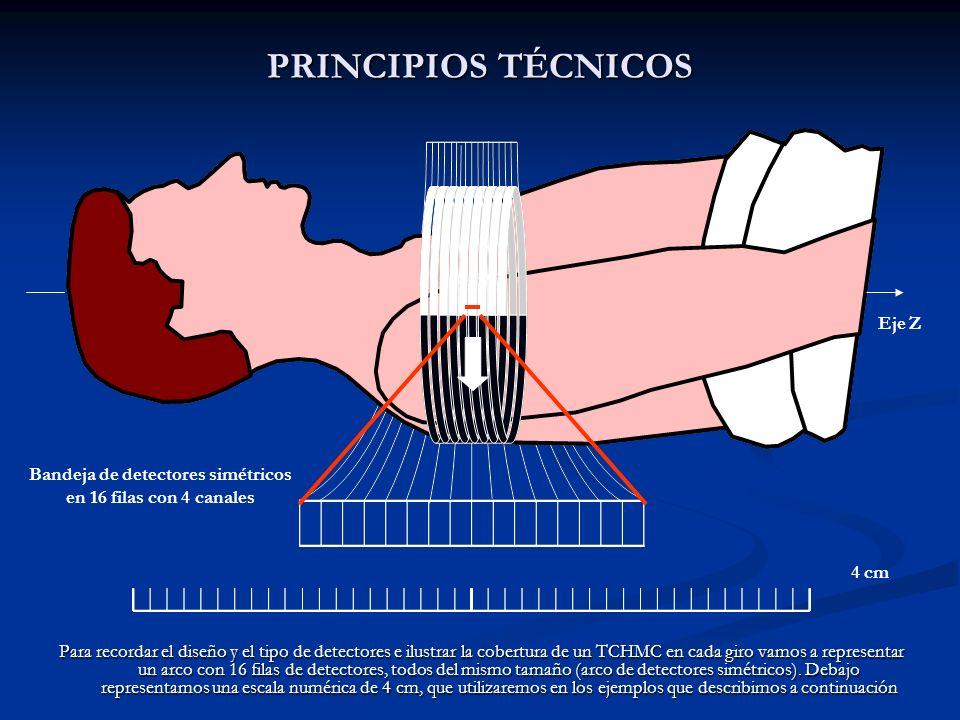 PRINCIPIOS TÉCNICOS Para recordar el diseño y el tipo de detectores e ilustrar la cobertura de un TCHMC en cada giro vamos a representar un arco con 1