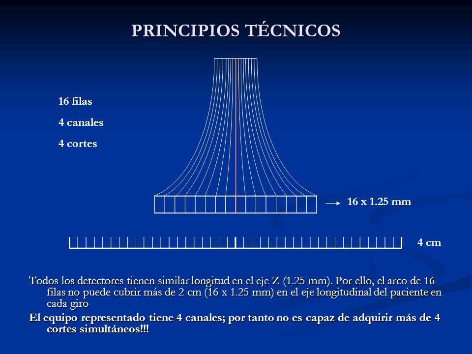 PRINCIPIOS TÉCNICOS Todos los detectores tienen similar longitud en el eje Z (1.25 mm). Por ello, el arco de 16 filas no puede cubrir más de 2 cm (16