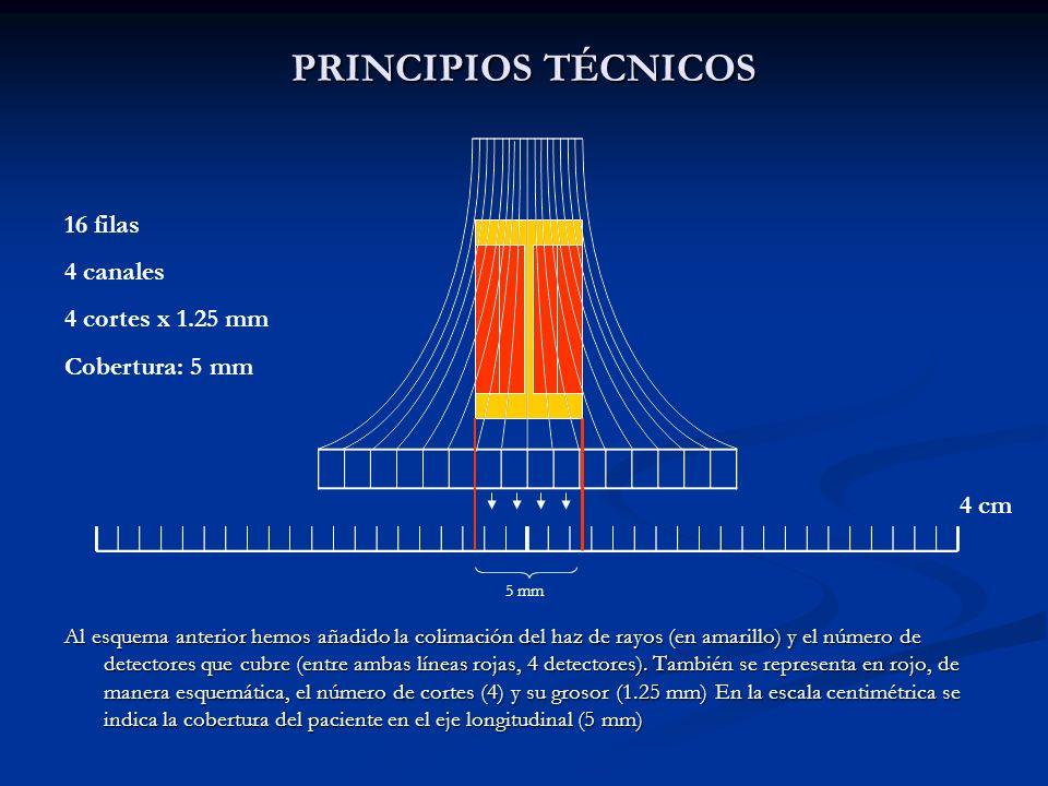 PRINCIPIOS TÉCNICOS Al esquema anterior hemos añadido la colimación del haz de rayos (en amarillo) y el número de detectores que cubre (entre ambas lí