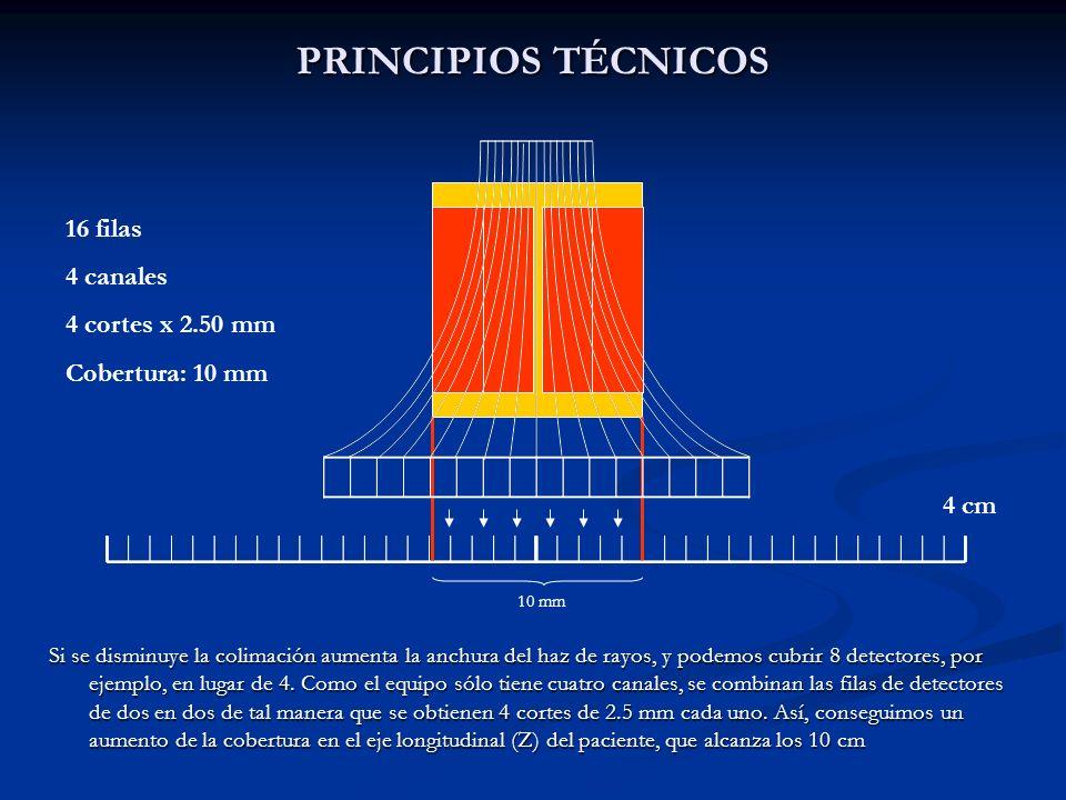 PRINCIPIOS TÉCNICOS Si se disminuye la colimación aumenta la anchura del haz de rayos, y podemos cubrir 8 detectores, por ejemplo, en lugar de 4. Como