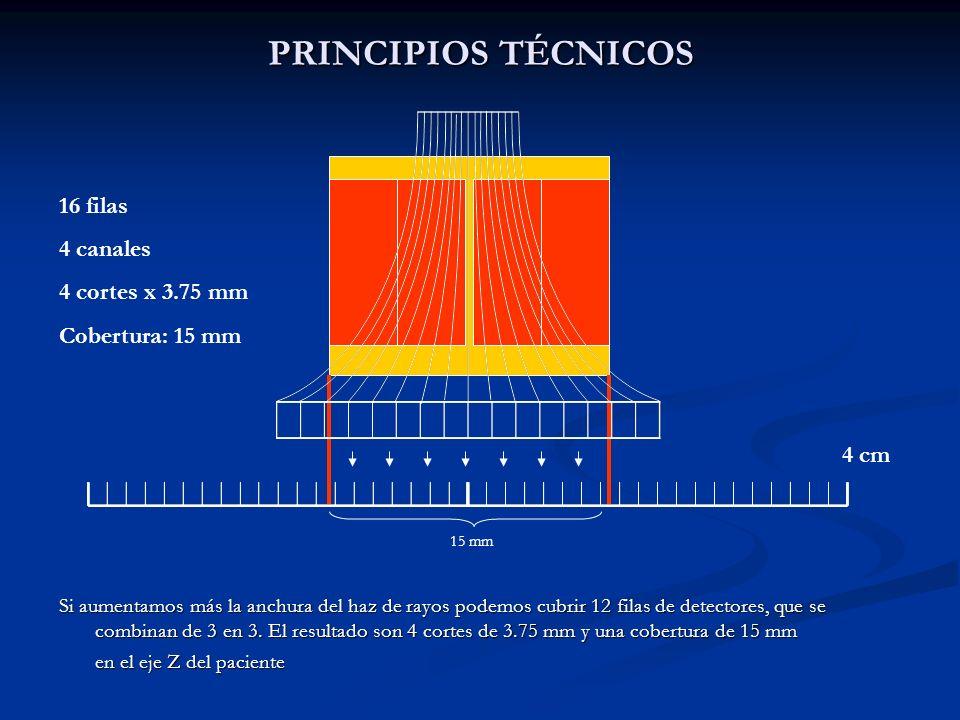 PRINCIPIOS TÉCNICOS Si aumentamos más la anchura del haz de rayos podemos cubrir 12 filas de detectores, que se combinan de 3 en 3. El resultado son 4
