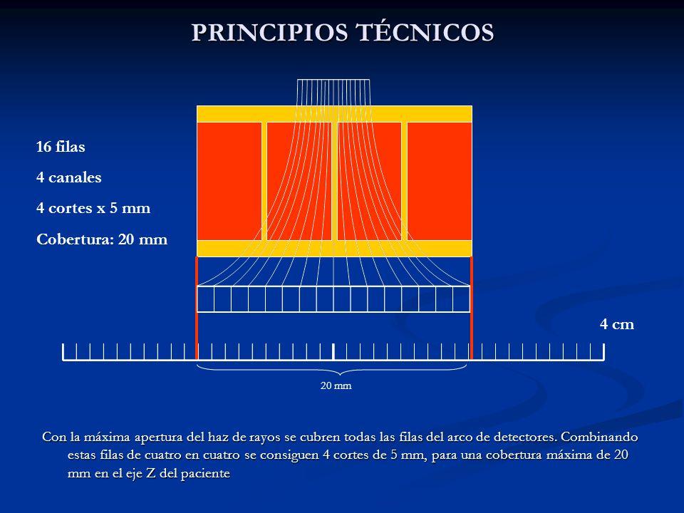 PRINCIPIOS TÉCNICOS Con la máxima apertura del haz de rayos se cubren todas las filas del arco de detectores. Combinando estas filas de cuatro en cuat