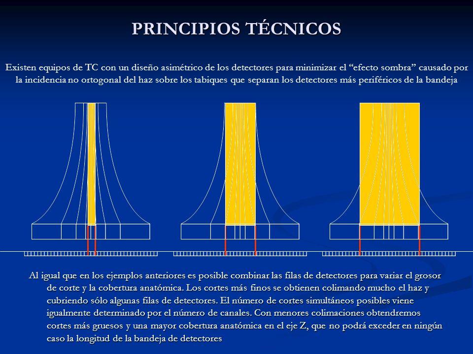 PRINCIPIOS TÉCNICOS Al igual que en los ejemplos anteriores es posible combinar las filas de detectores para variar el grosor de corte y la cobertura