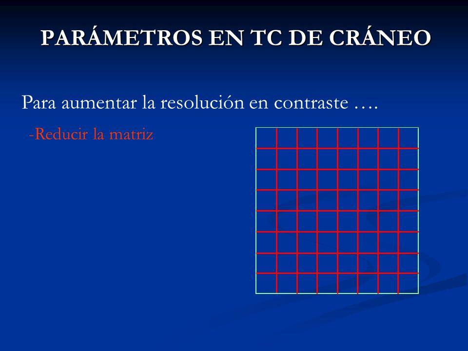 PARÁMETROS EN TC DE CRÁNEO Para aumentar la resolución en contraste …. -Reducir la matriz